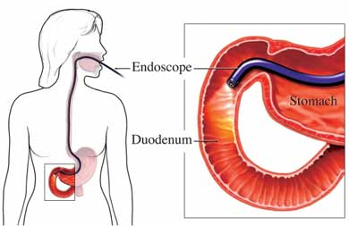 Endoscope in stomach