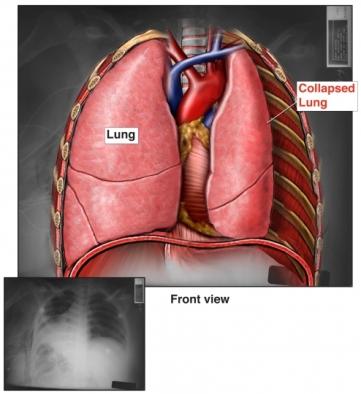 radiografía de pulmón colapsado