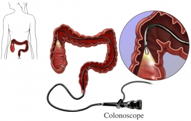 Colonoscopy scope