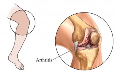 Daño en la unión de la rodilla