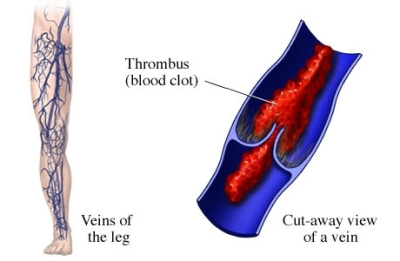 ON the left side, the veins of the leg are shown. On the right side, a close-up, cut-away view of a vein showing a thrombus (or blood clot) in the vein, causing thrombophlebitis.