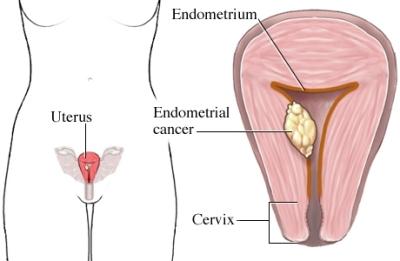 Tumor del endometrio