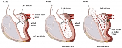 a description of cause and effect of heart defect called mitral valve prolapse Home » current health articles » heart murmurs (abnormal heart sounds) types, causes,  cardiac shunts or heart valve disease  mitral valve prolapse.