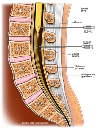 myelogram