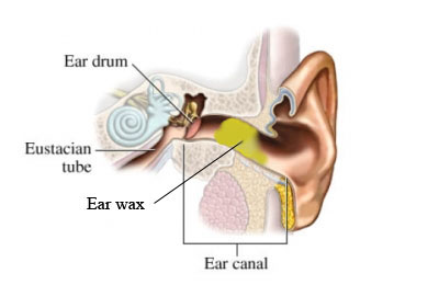 buildup of earwax how to clear