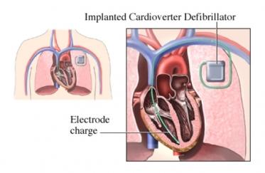 Automatic Cardioverter Defibrillator Implantation