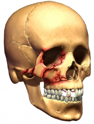 skull fracture zygo and eye socket