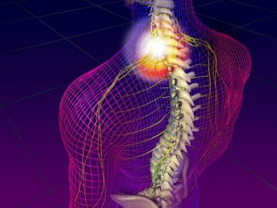 Chronic Neck Pain - Cancer Care of Western New York