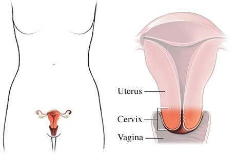 cervix with vagina and uterus