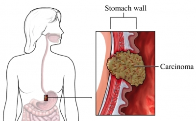 Stomach Cancer Cancer Care Of Western New York