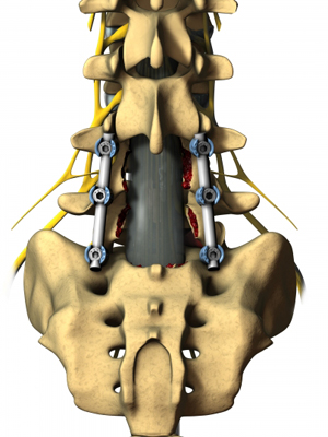 Posterior Spinal Fusion