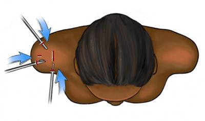 Shoulder Arthroscopy Incisions