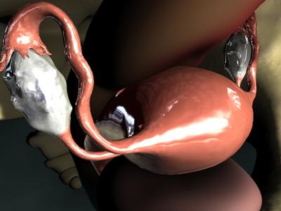 Laparoscopic View of Ovary and Uterus