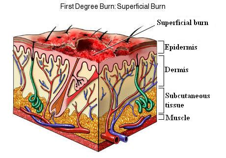 First Degree Burn: Superficial Burn
