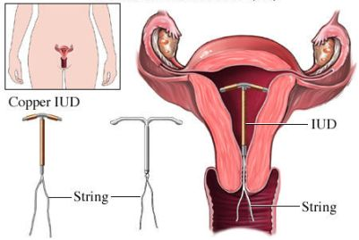 si55551653_IUD Insertion.jpg