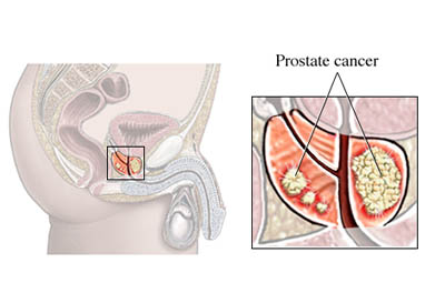 active prostate cancer icd 10