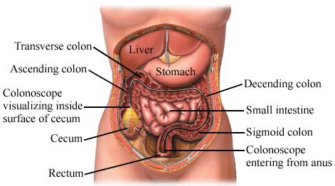 Colorectal Cancer Icd 10 C19 Indigomedconnect
