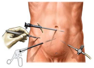 Cálculos en la vesícula-Laparoscopía - cirugía robótica
