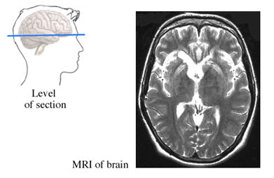 MRI of the Brain