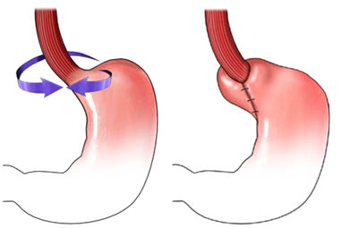 Fundoplication