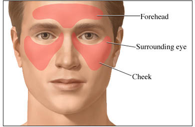 Sinus Headache: Areas of Pain