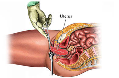 Vaginal Hysterectomy