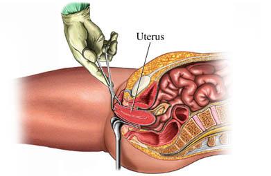 Histerectomía vaginal