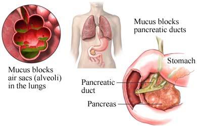 mucous plug aveoli and pancrease