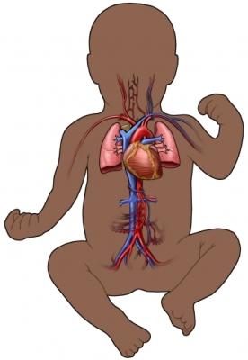 AL00079-B_97870_1_ciruclatory_infant