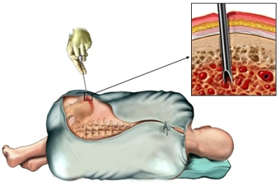 Biopsia ósea pelvis