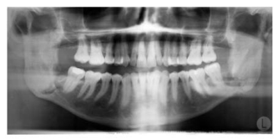 Jaw x-ray teeth
