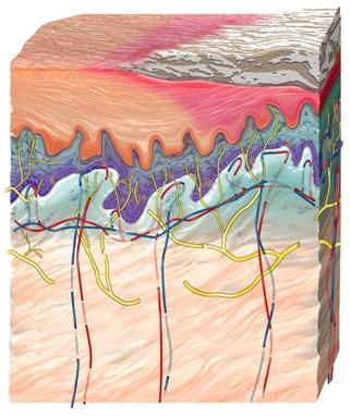 Lichen Planus