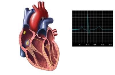 ECG de corazón