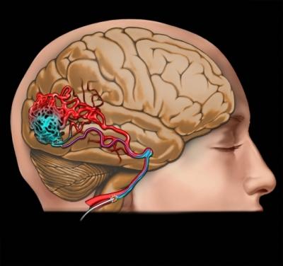 AVM brain blood vessels