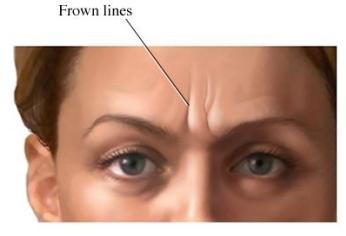 arrugas del entrecejo