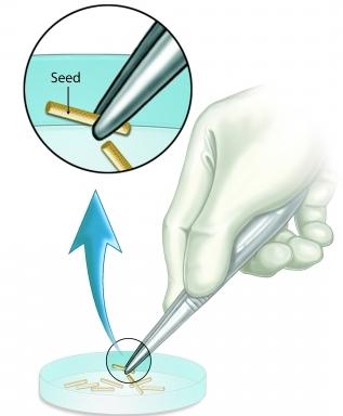 semillas de braquiterapia