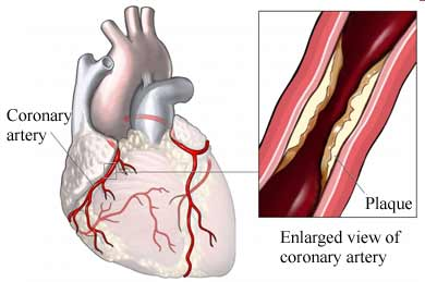 Coronary Artery plaque