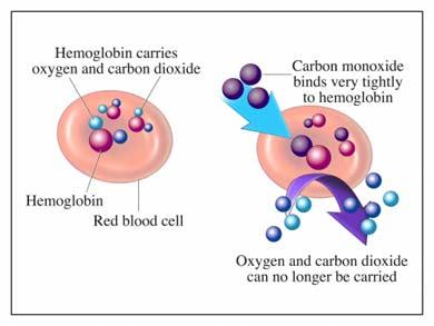 Envenenamiento por monóxido de carbono