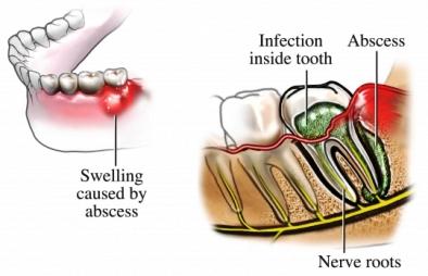 Absceso dental