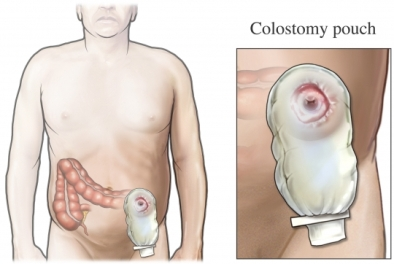colostomy pouch