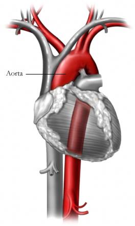 BP00015_96472_1_aorta.jpg