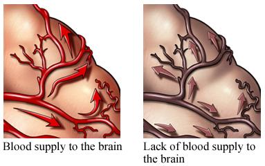 Flujo de sangre y ausencia del flujo de sangre al cerebro