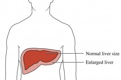 Aumento del tamaño del hígado