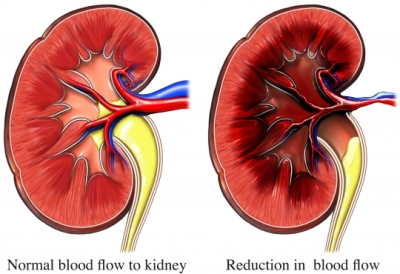 Kidney damage