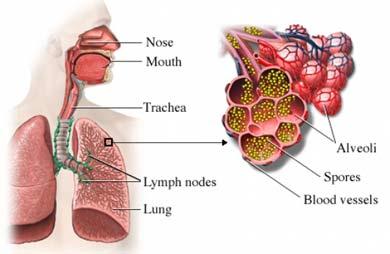 Inhalación de esporas