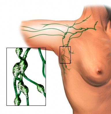 damaged lymph