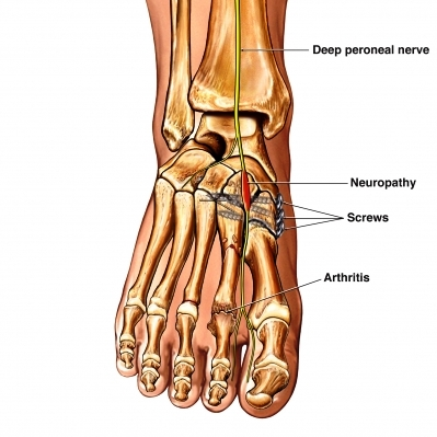 Peroneal injury