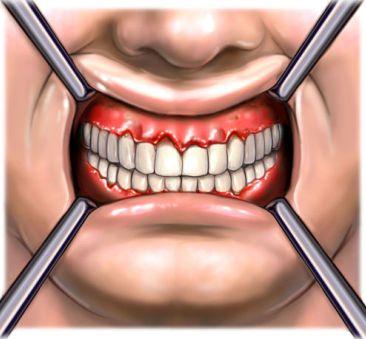 si1528_periodontal disease.jpg