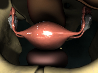 Laparoscopic View of Uterus