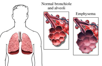 Normal Lung and Emphysemic Lung
